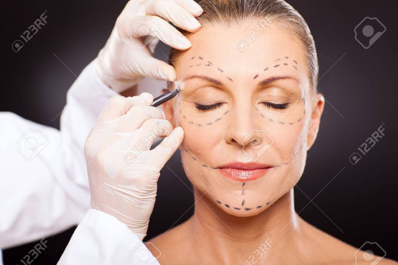 middle aged woman with correction marks preparing for plastic surgery Stock Photo - 18661308
