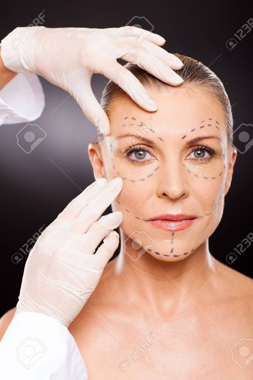 doctor hands preparing middle aged woman for face lifting surgery Stock Photo - 18661259