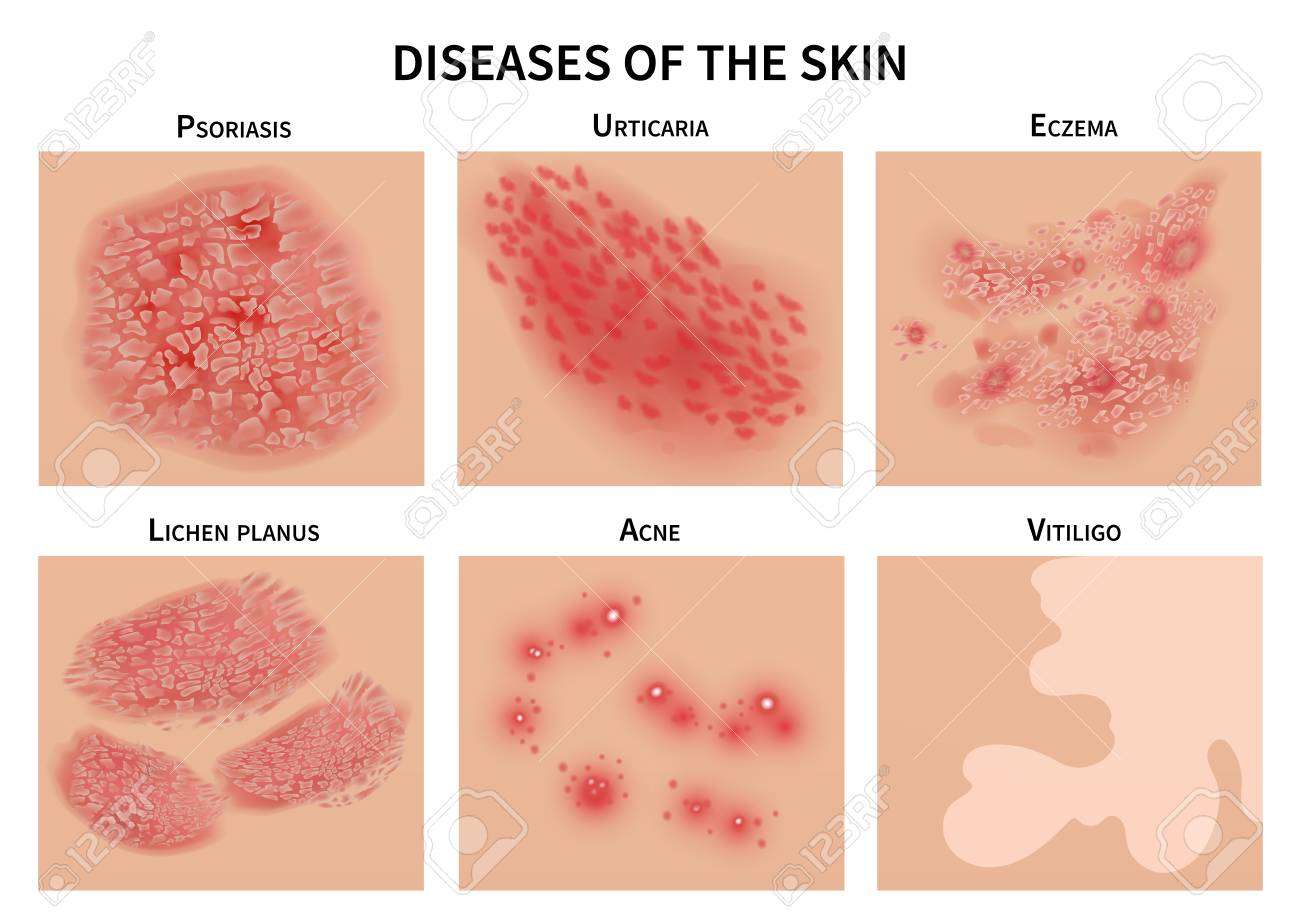Skin diseases. Derma infection, eczema and psoriasis. Dermatology vector illustration - 106838009
