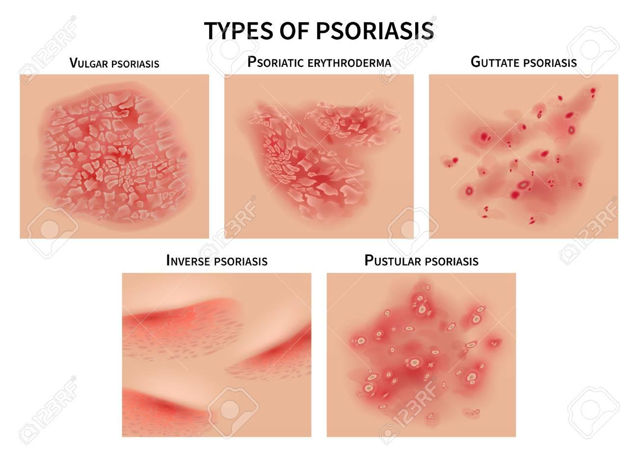 Psoriasis types. Skin hives, derma diseases. Closeup medical vector illustration. Dermatology allergy, medical itch and rash, symptom of epidermis - 111588972
