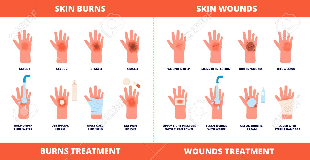 Skin first aid. Burns treatment, wounds and trauma symptoms. Degree burn, help hand healing with cream, bandaging and pills vector poster. Injury skin and wound care, treatment hurt illustration - 137557309