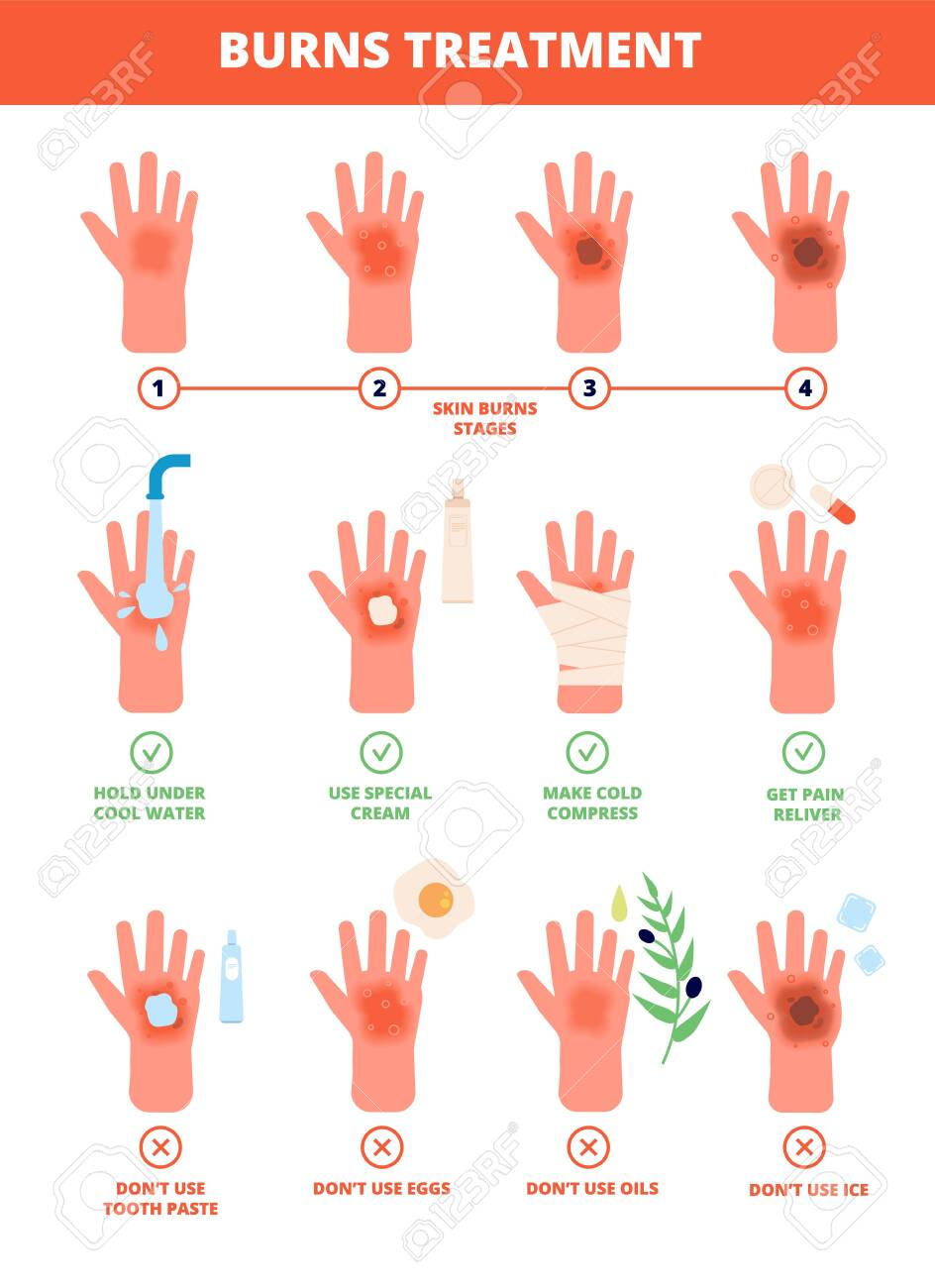 Skin burn. Burned hand treating, protection burns. First aid and treatment, stages of burning. Flat vector medical treat illustration. Degree burning burnout skin hand, damage and medical care - 141281722