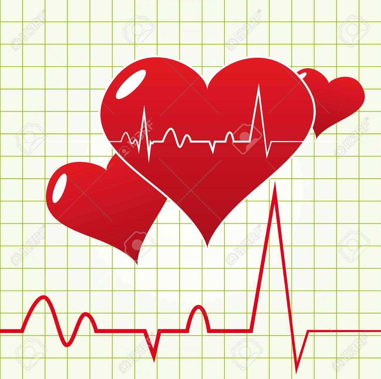 Único Diagrama Del Corazón Colección - Imágenes de Anatomía Humana ...