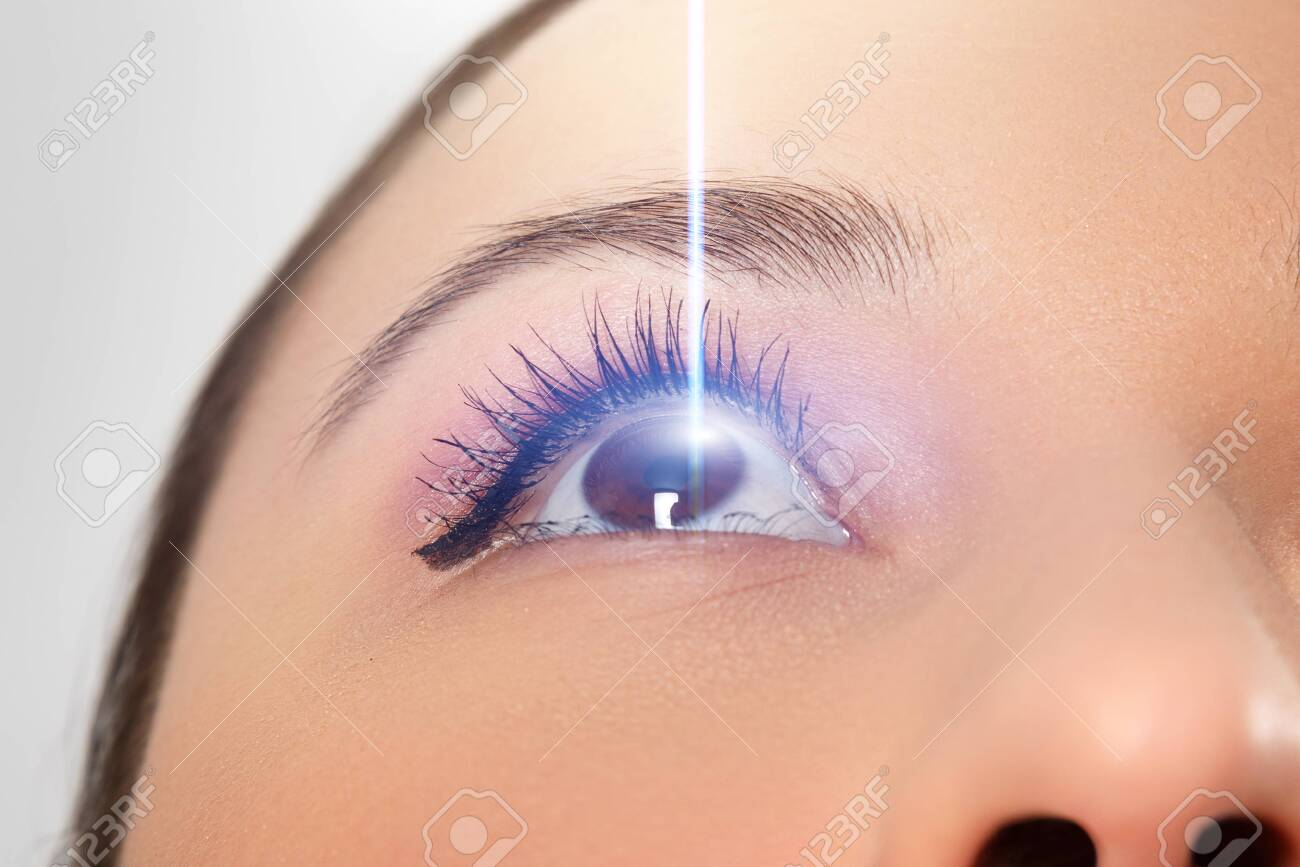 woman's eye close-up. Laser beam on the cornea. Concept of laser vision correction, ophthalmology - 135131448