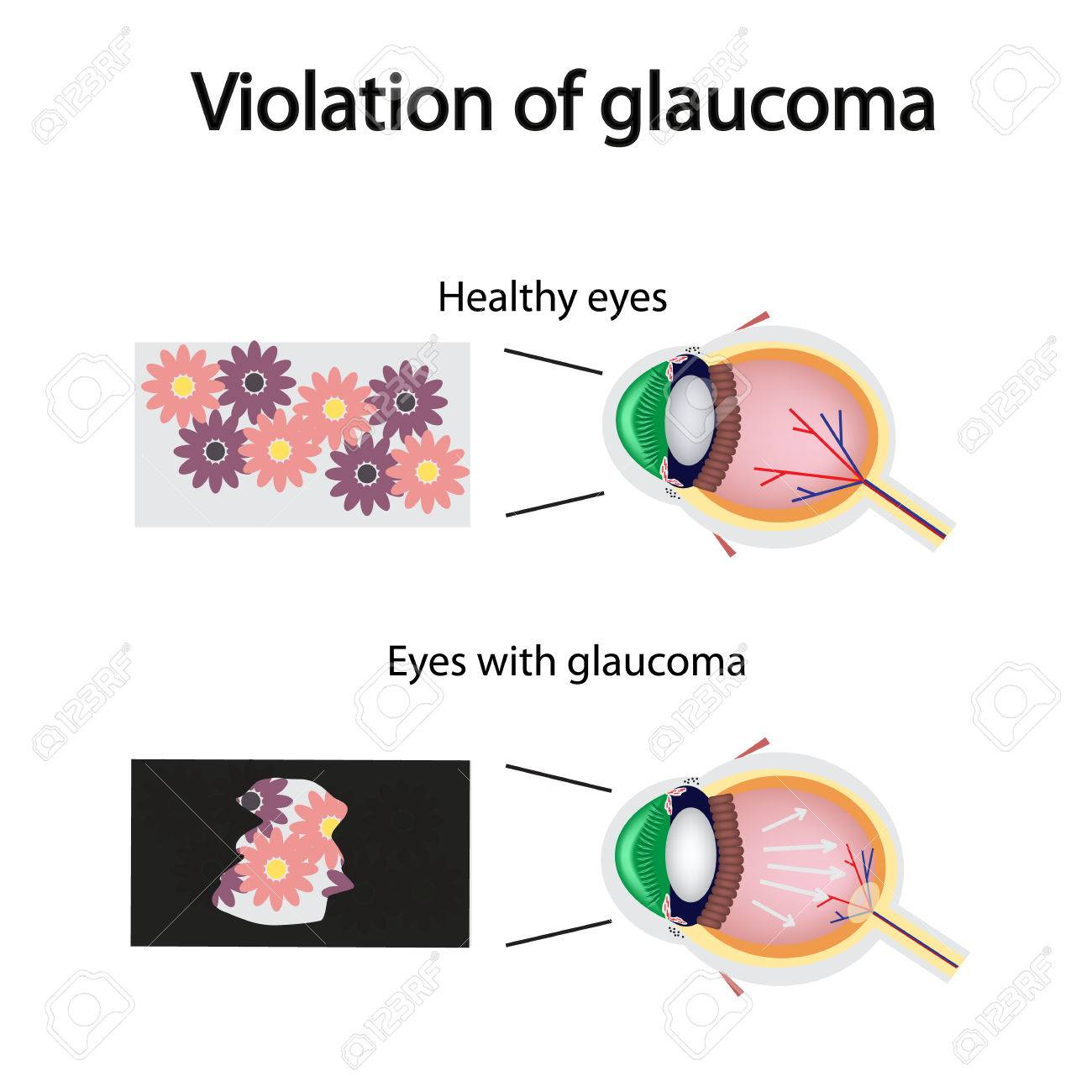 The structure of the eye. Blurred vision in glaucoma. As the eye can see the affected with glaucoma. - 40048329