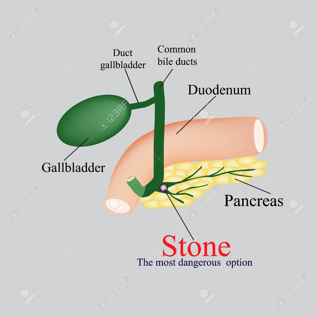 Stone pancreatic bile duct the gall bladder duodenum bile ducts stone pancreatic bile duct the gall bladder duodenum bile ducts vector illustration ccuart Image collections