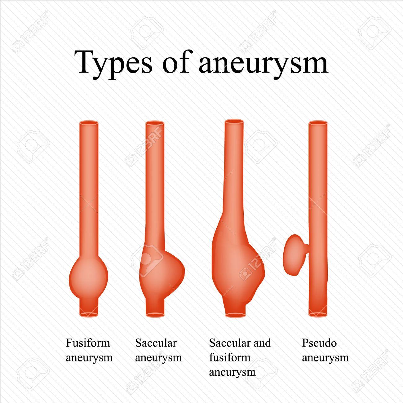 Aneurysm. Types aneurysm. Infographics. - 50072664