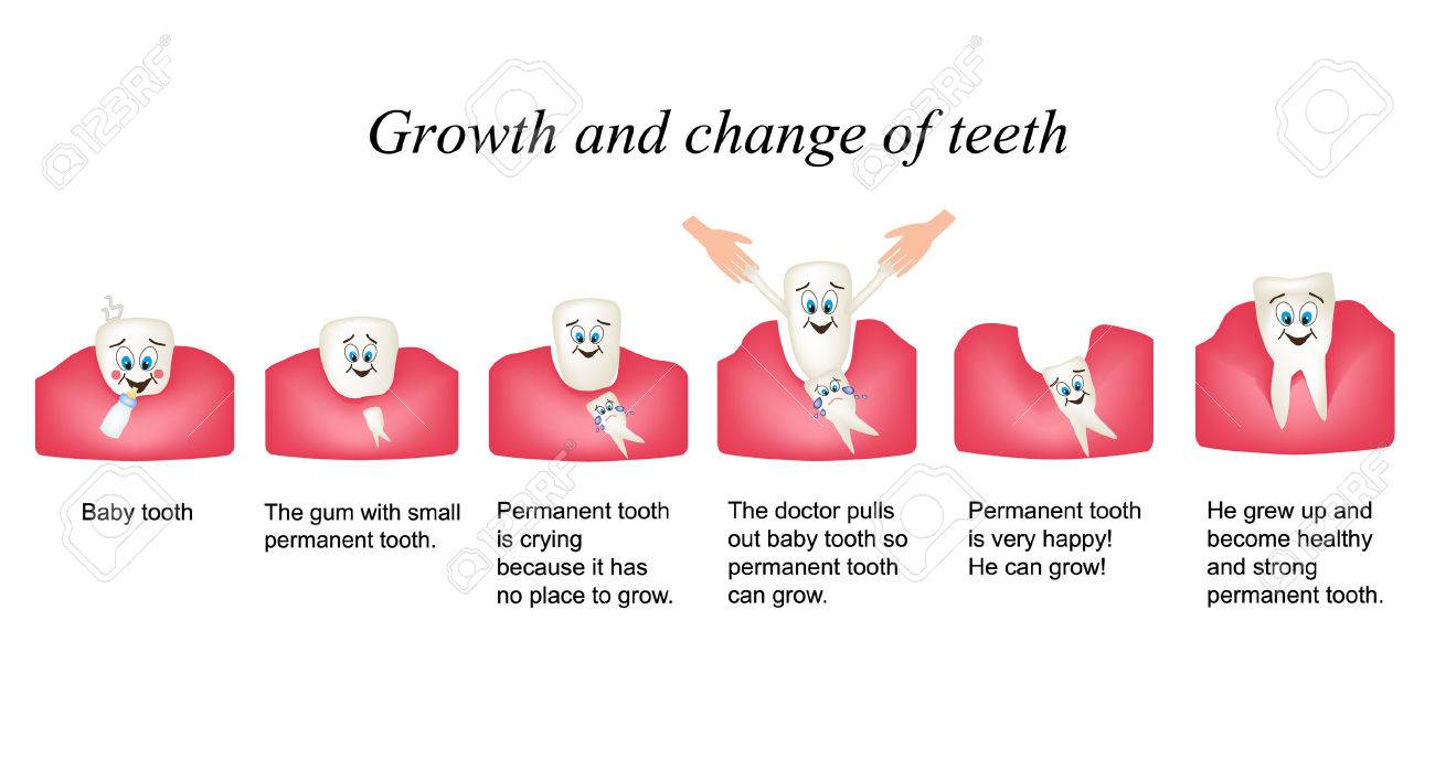 Growth and shift teeth in humans. Stages of development of teeth. Children multiplekatsionny style. Infographics. - 51210329