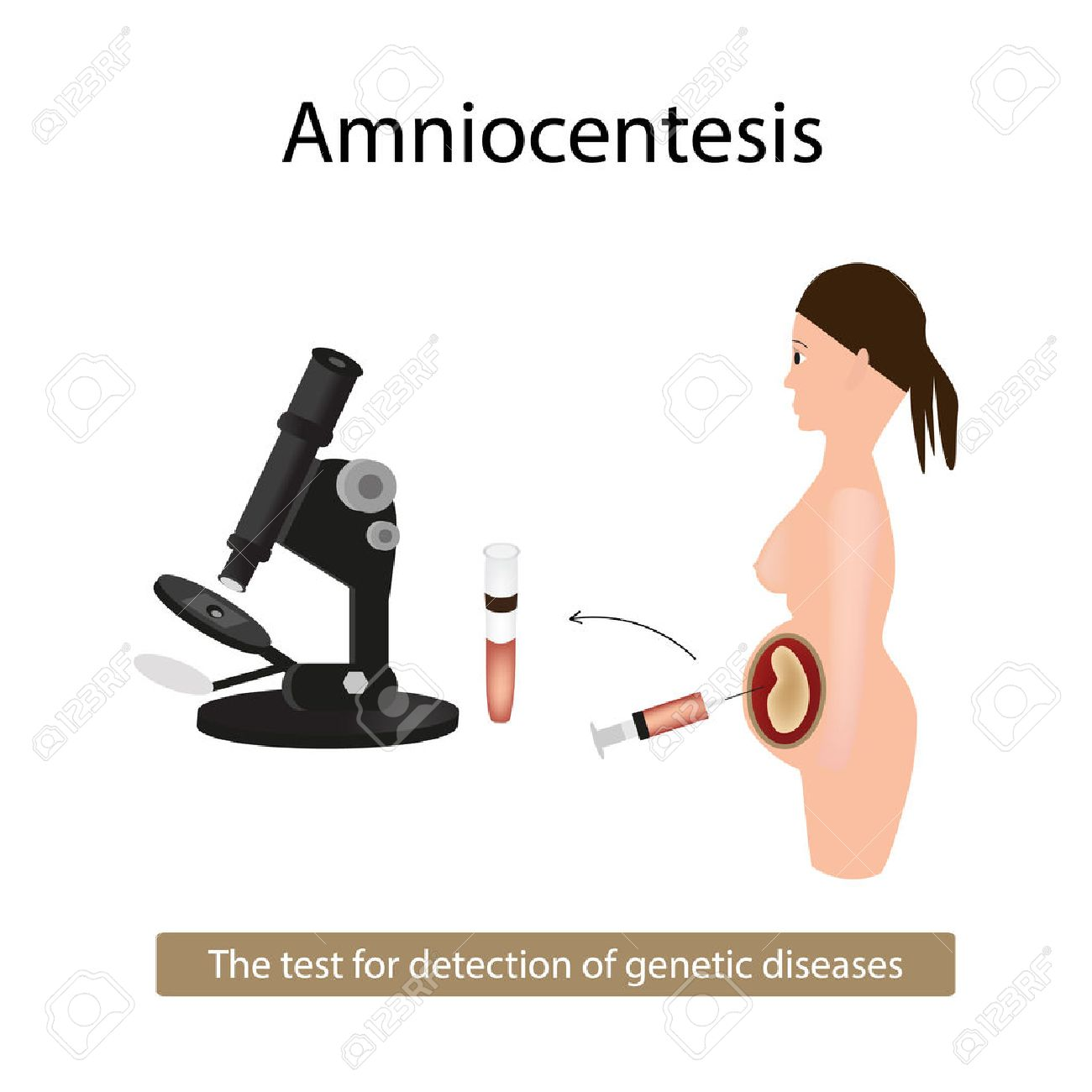 Amniocentesis. Analysis of amniotic fluid. Pregnant woman. Genetic diseases. illustration on isolated background. - 54267259