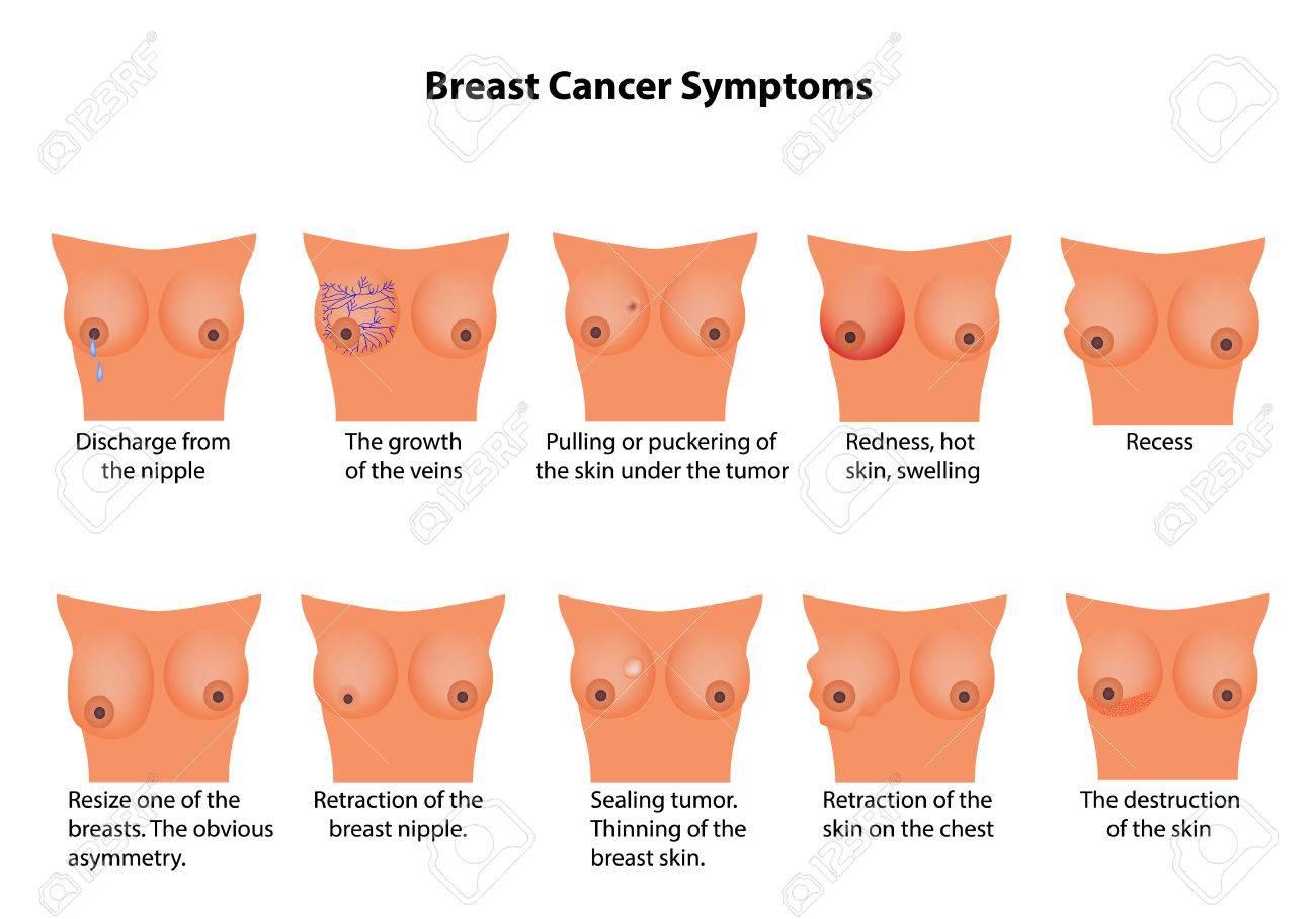 cancer feminin symptomes