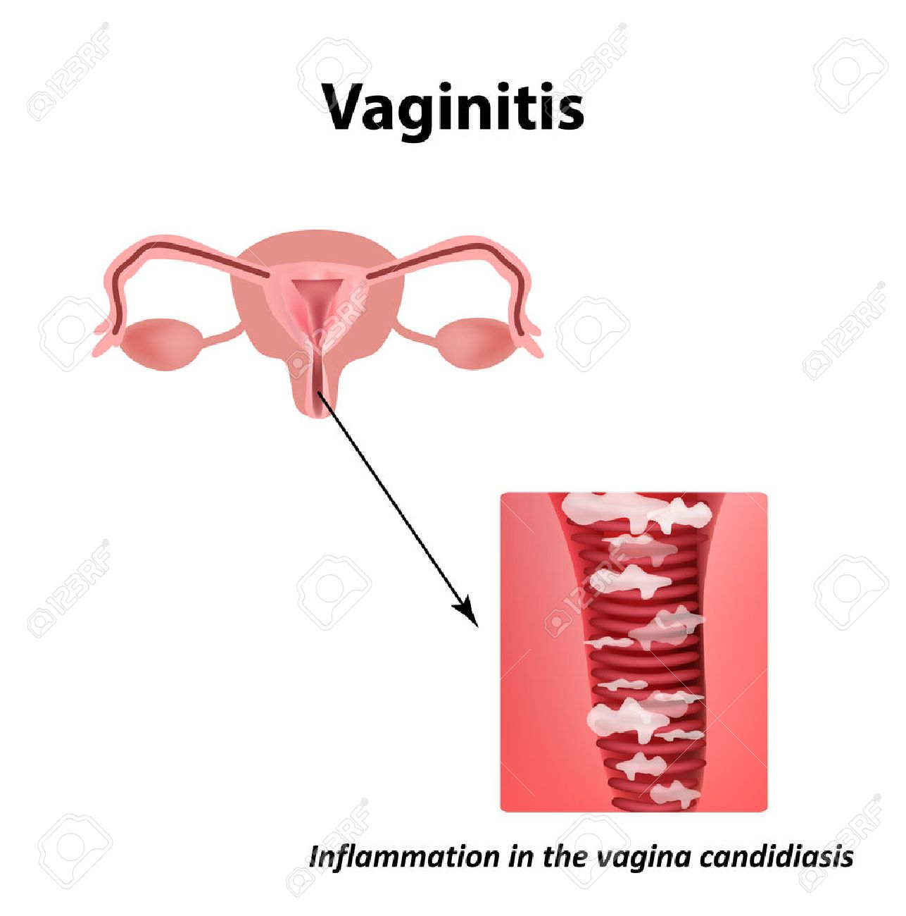Vaginitis. Inflammation in the candidiasis thrush. The structure of the pelvic organs. Infographics. Vector illustration on isolated background. - 68281150