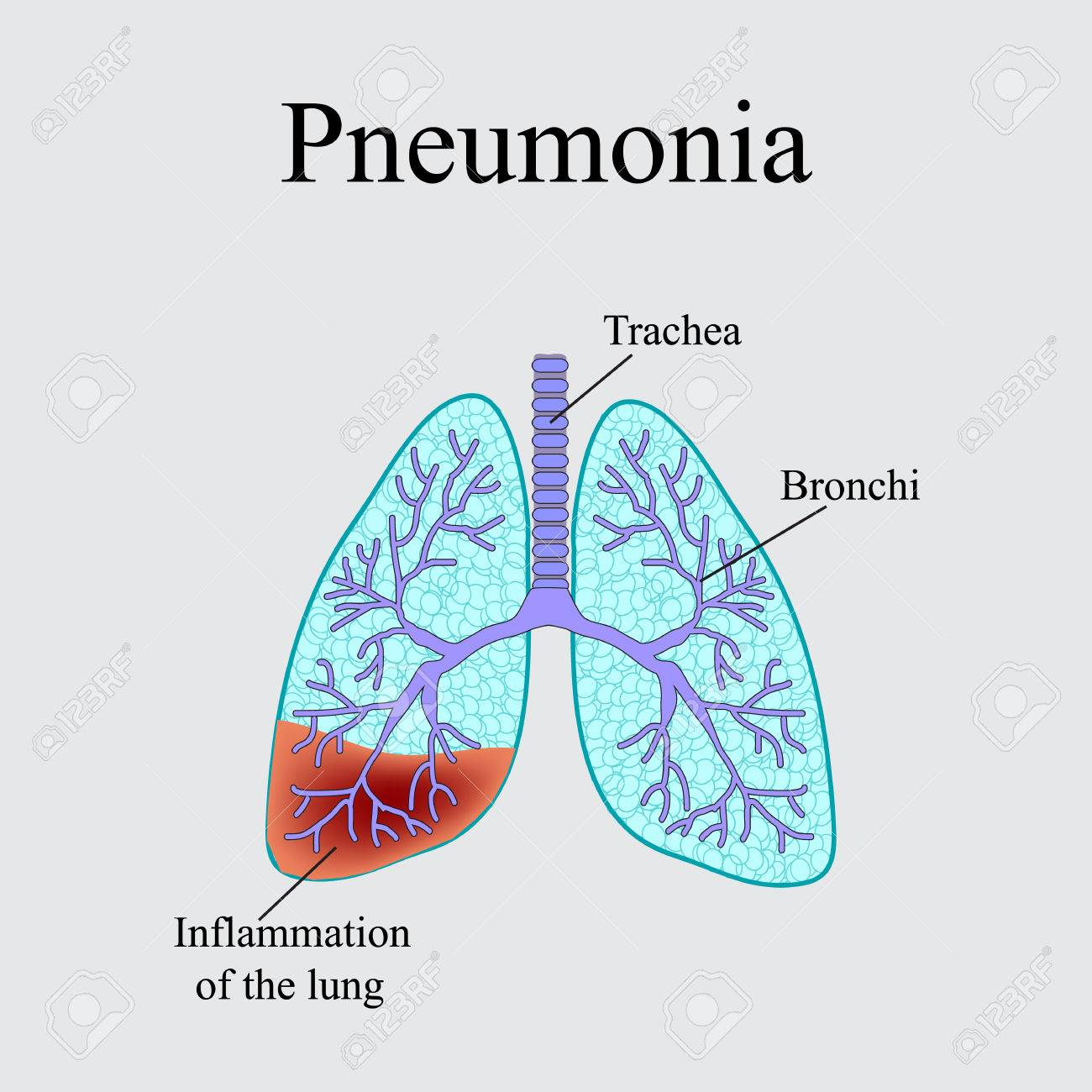 Pneumonia The Anatomical Structure Of The Human Lung Vector
