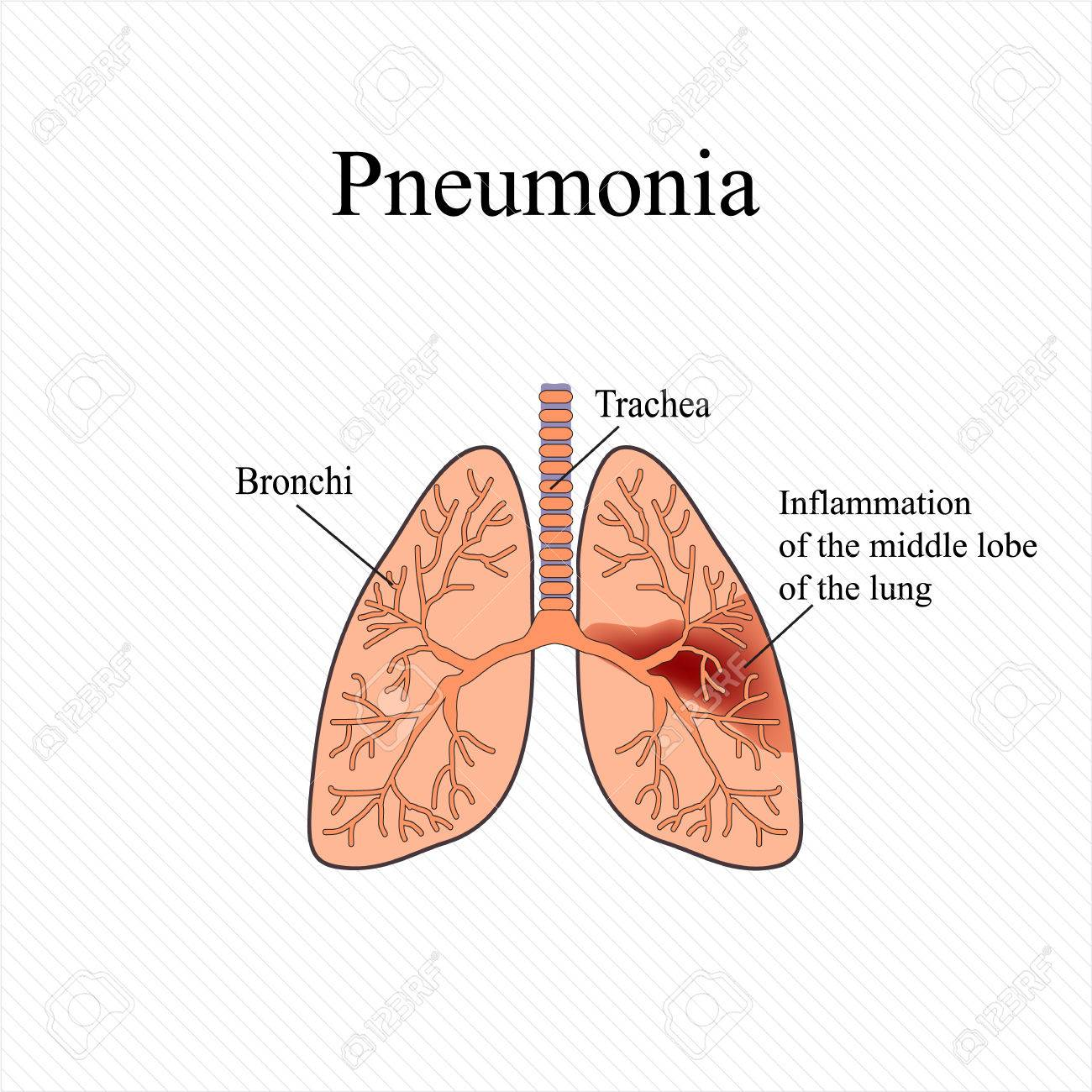 Pneumonia The Anatomical Structure Of The Human Lung Inflammation