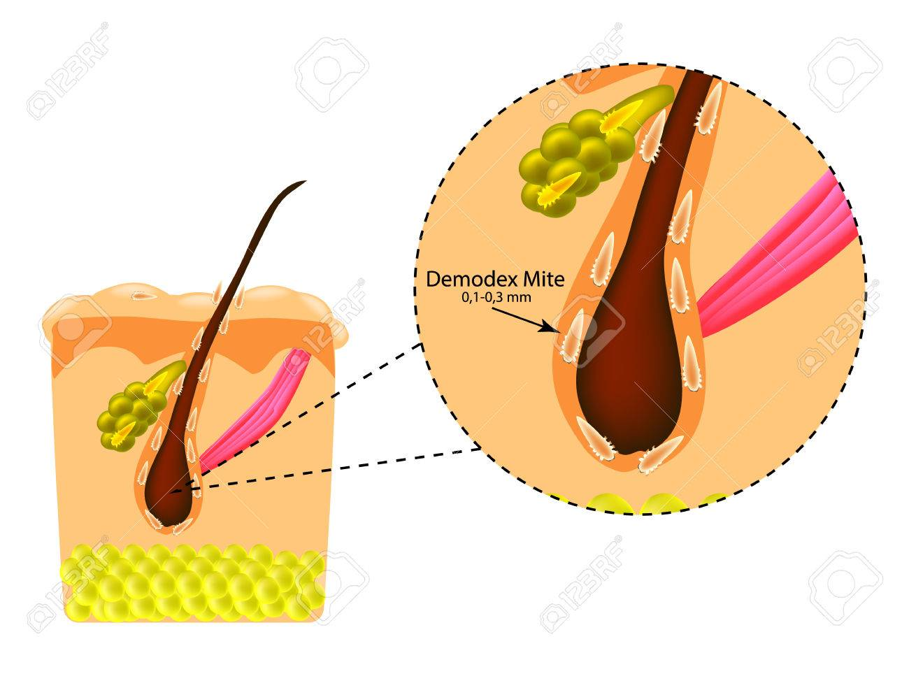 The structure of the hair. Sebaceous gland. Introduction of demodex mite. Demodecosis. Infographics. Vector illustration on isolated background. - 75562856