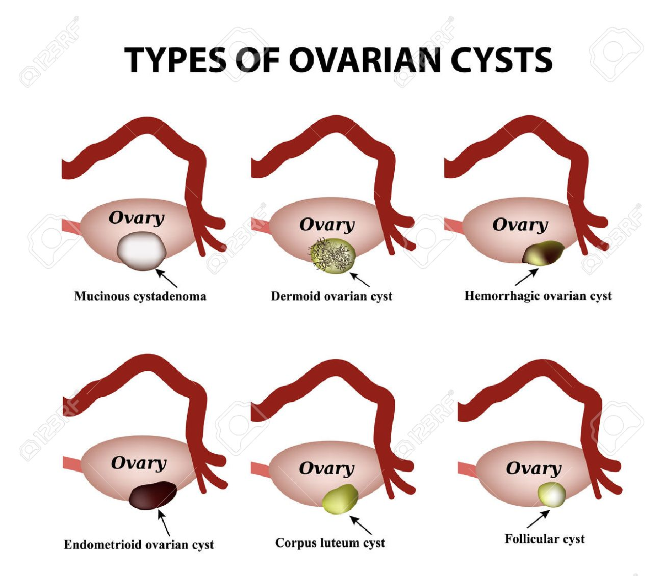 Types of ovarian cysts. - 80903585