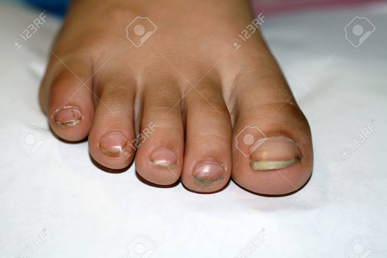 Nails On The Feet, Dirty. Ingrown Toenails. Black Dirty Fingernails ...