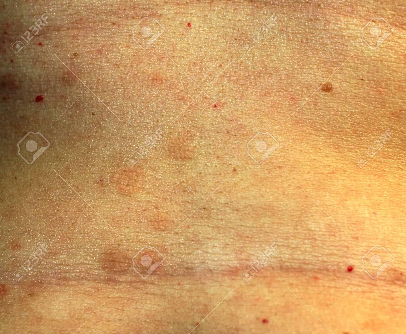 Symptoms of red flat lichen