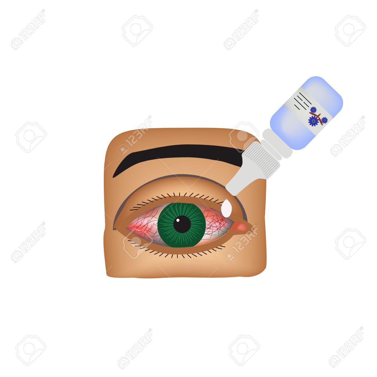 Conjuntivitis. Enrojecimiento E Inflamación Del Ojo. Buques Gotas ...