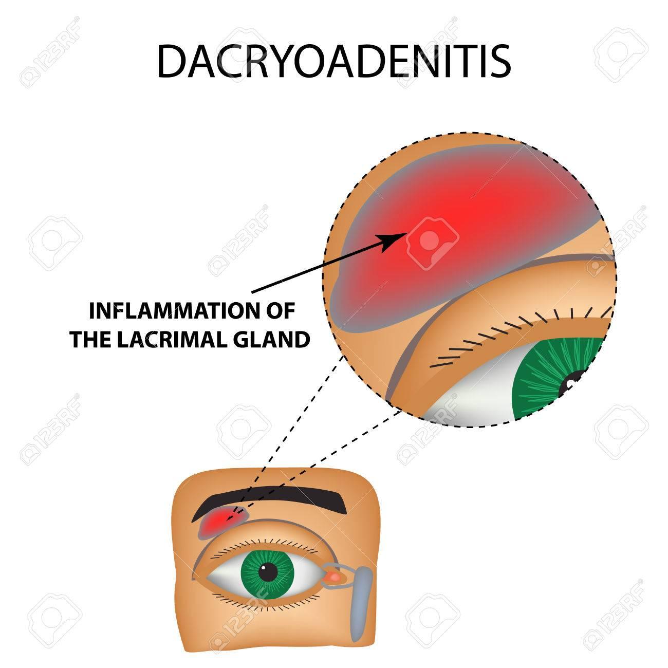 Dacryoadenitis. Inflamación De La Glándula Lagrimal. La Estructura ...