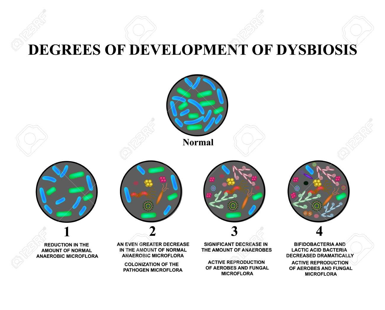 Endo-Kapszula Magánorvosi Centrum - Kezeléseink - Vékonybél dysbacteriosis
