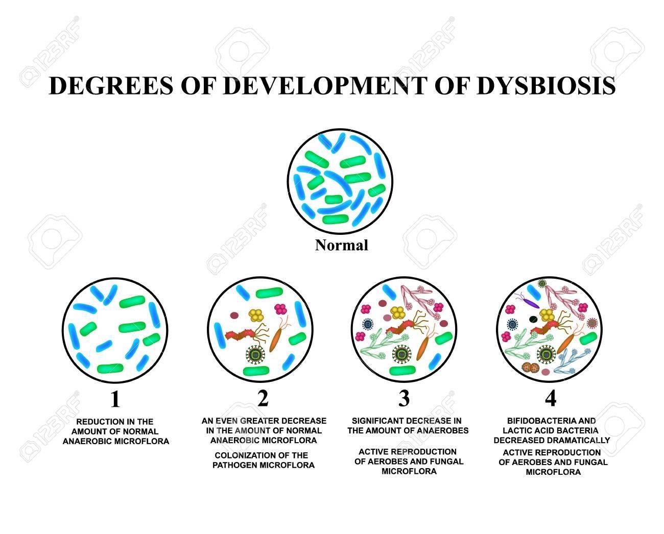 vastagbél dysbiosis