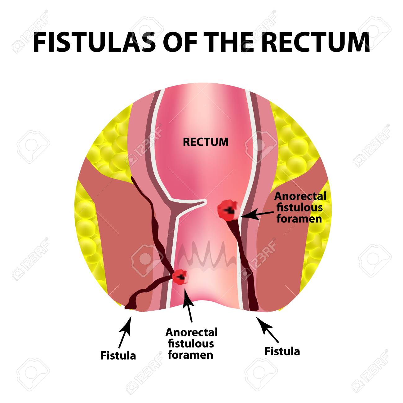 Types of fistulas of the rectum. Paraproctitis. Anus. Abscess of the rectum. Infographics. Vector illustration on isolated background. - 96609923