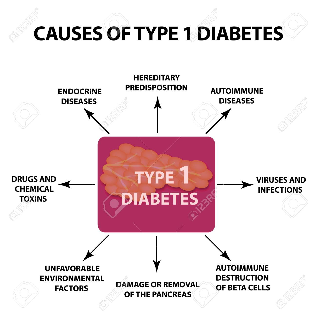 The causes of Diabetes Type 1, Infographics illustration on isolated background. - 96782486
