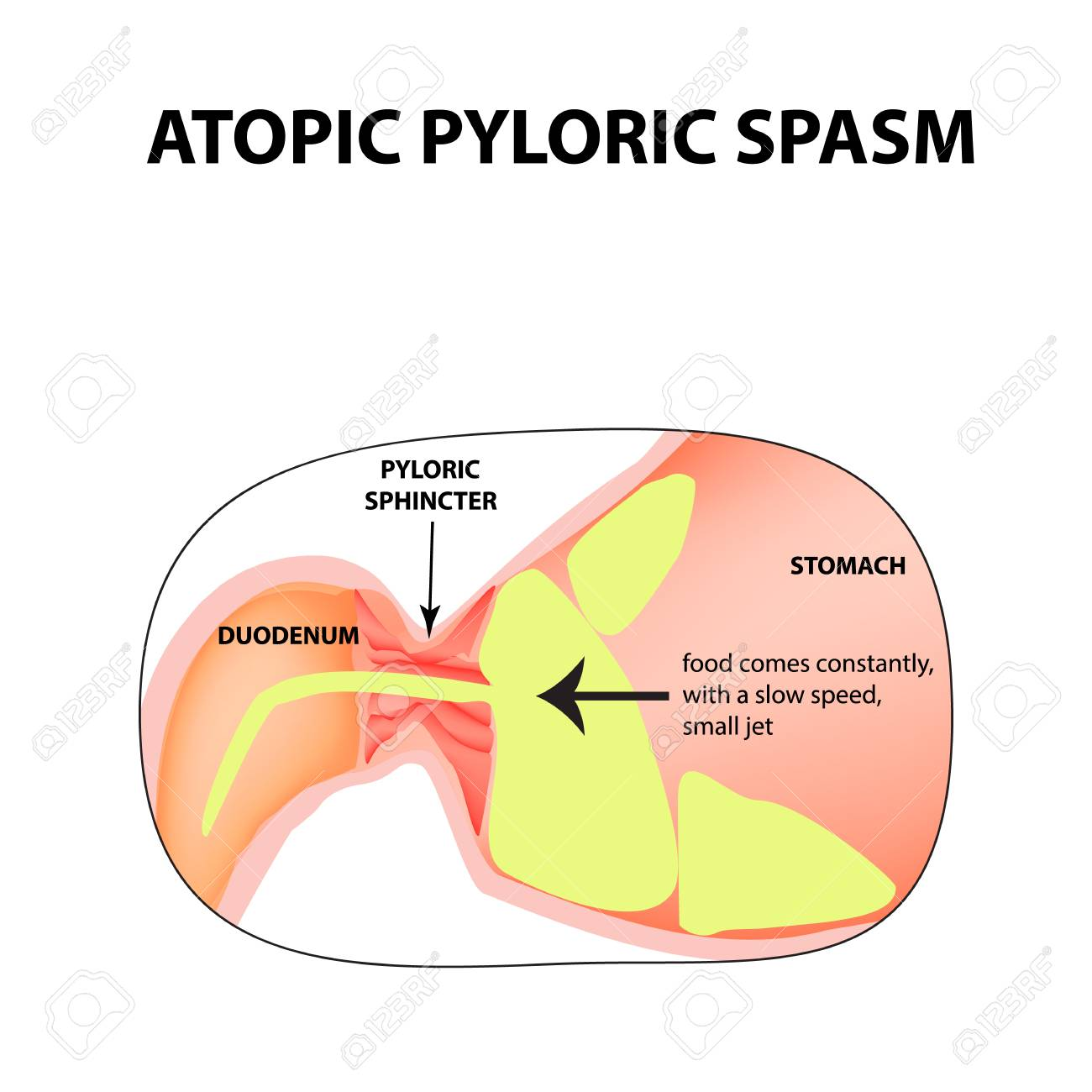 Spasms Of The Pylorus Spastic Pyloric Sphincter Of The Stomach