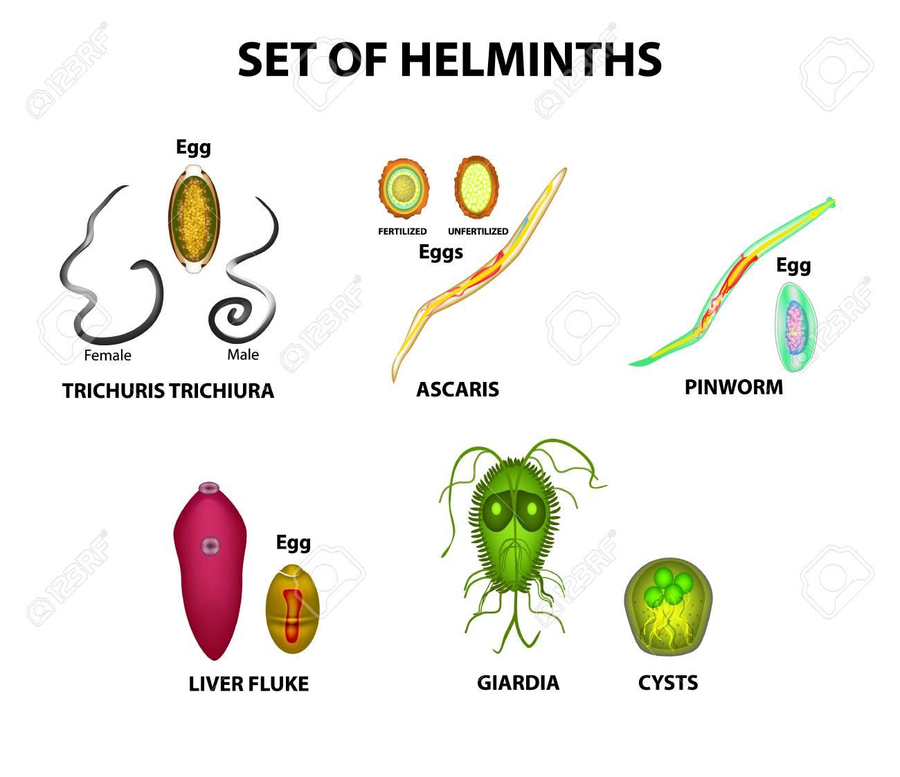 fluke helminthiasis parazita fertőzés kezelése természetesen