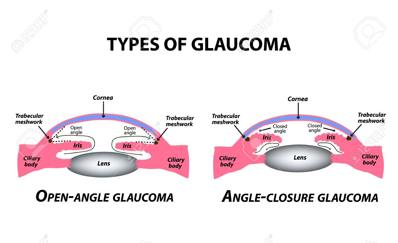 Types of glaucoma. Open-angle and angle-closure glaucoma. The anatomical structure of the eye. Infographics. Vector illustration on isolated background - 124785338