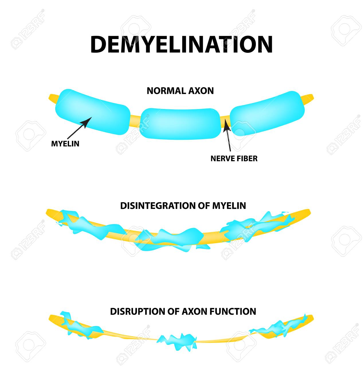 The destruction of the myelin sheath on the axon. Damaged myelin. Neuron affected by multiple sclerosis. World Multiple Sclerosis Day. Infographics. Vector illustration on isolated background. - 119591540