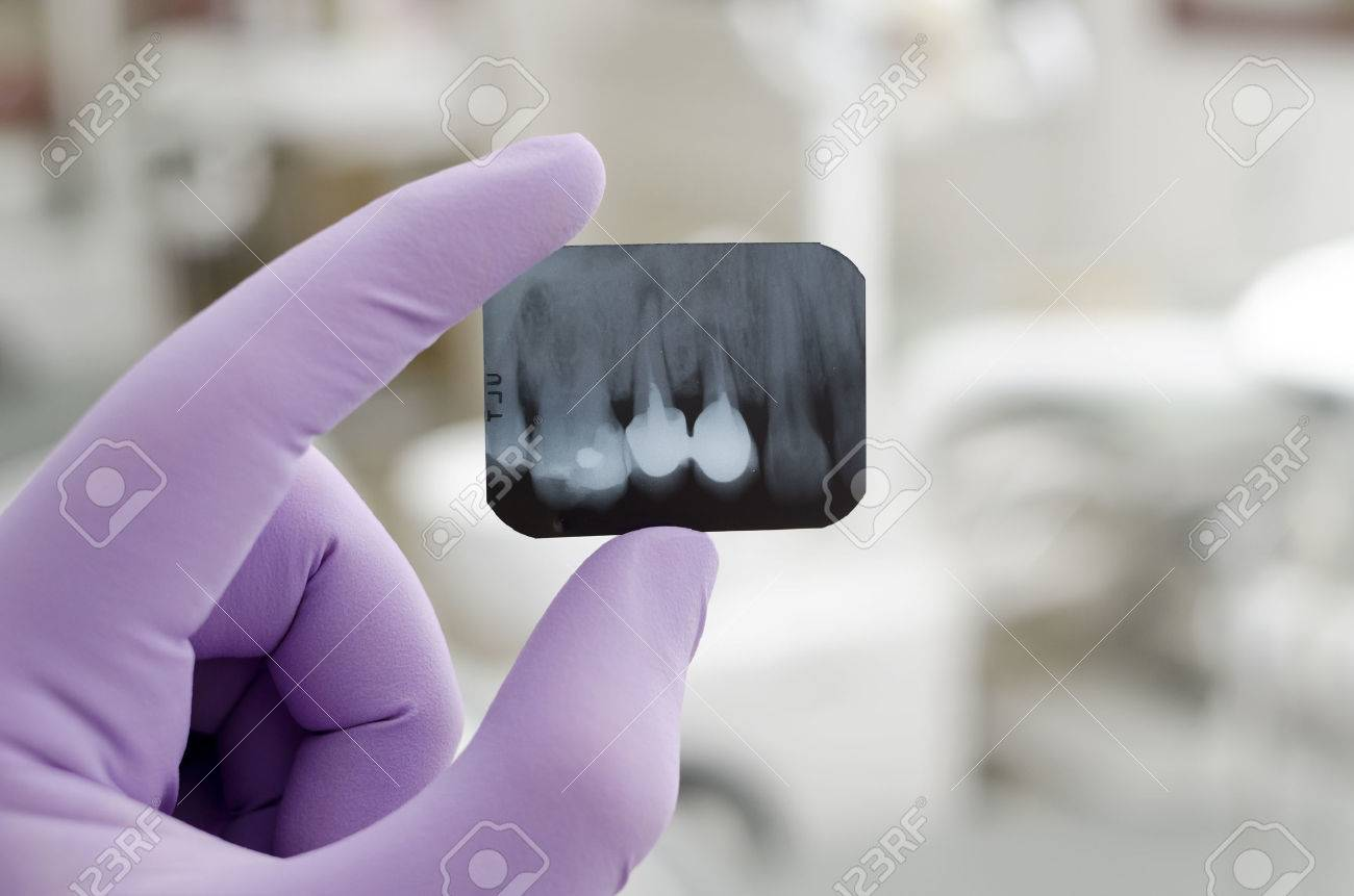 Doctor holding and looking at dental x-ray - 24584122