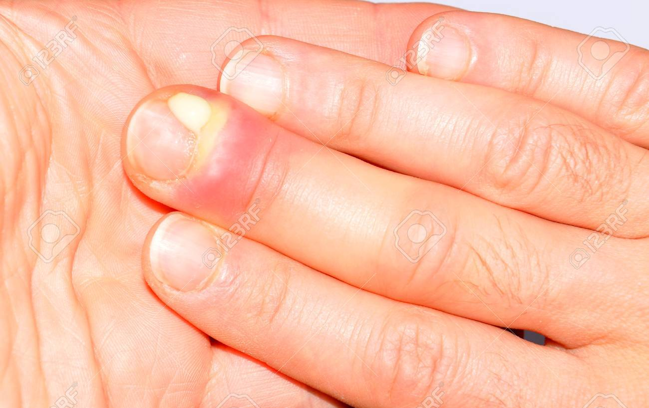 Hand Infection Stock Photo, Picture And Royalty Free Image. Image ...