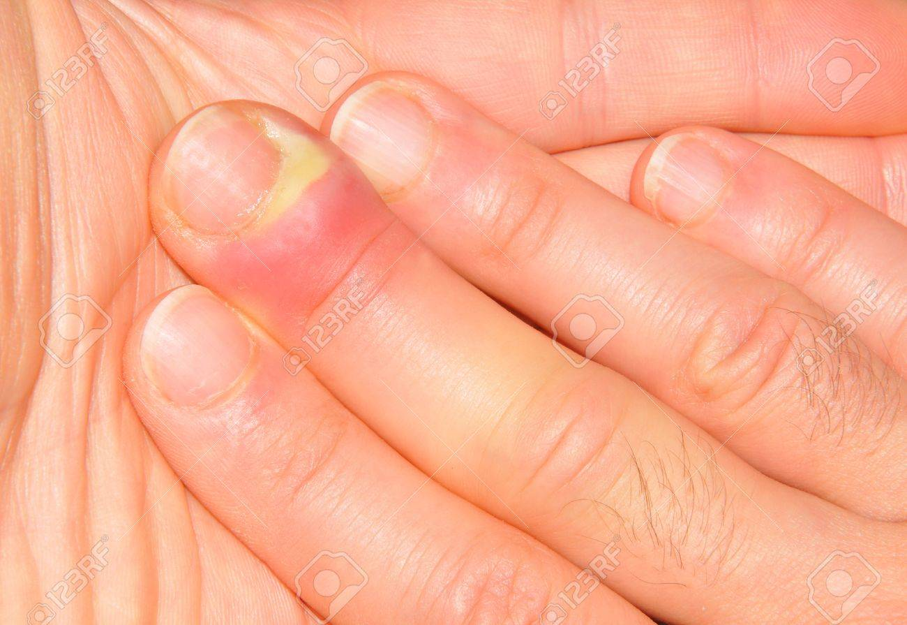 Hand Or Finger Infection Detail Stock Photo, Picture And Royalty ...