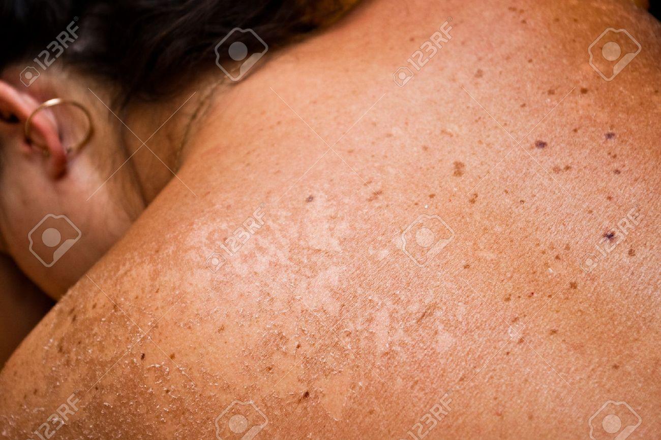closeup of sun burned skin Stock Photo - 12429781