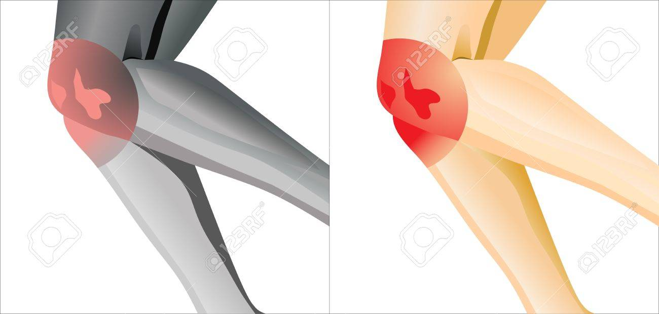 suffering from joint pain in knee Stock Vector - 16084688