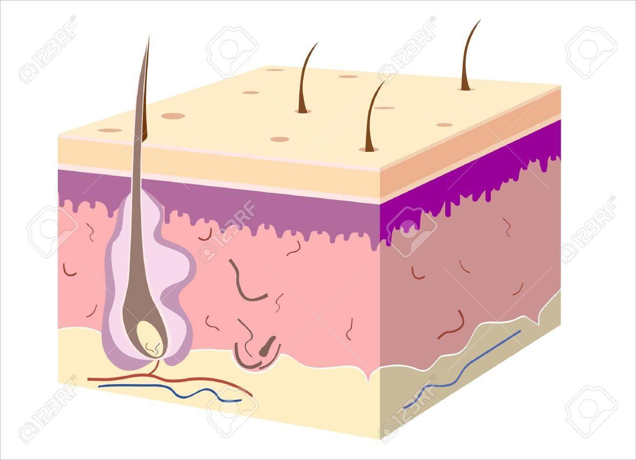 3D skin oblique with cut away epidermis - 17483915