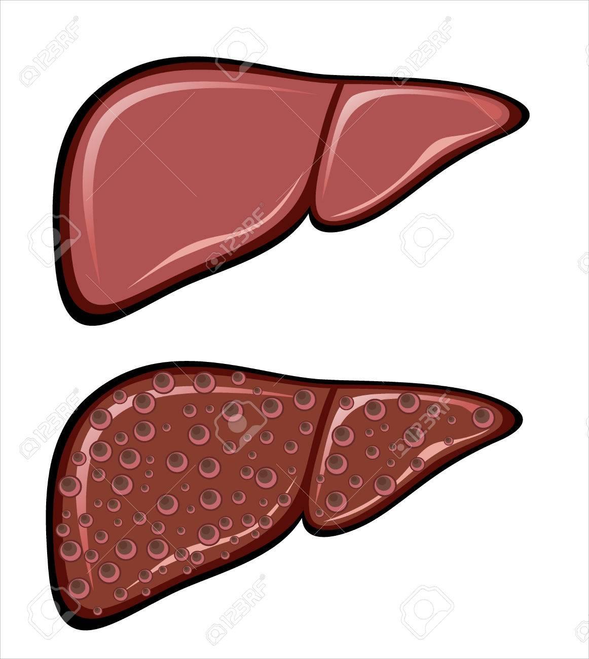 Liver Cirrhosis disease - 25152857
