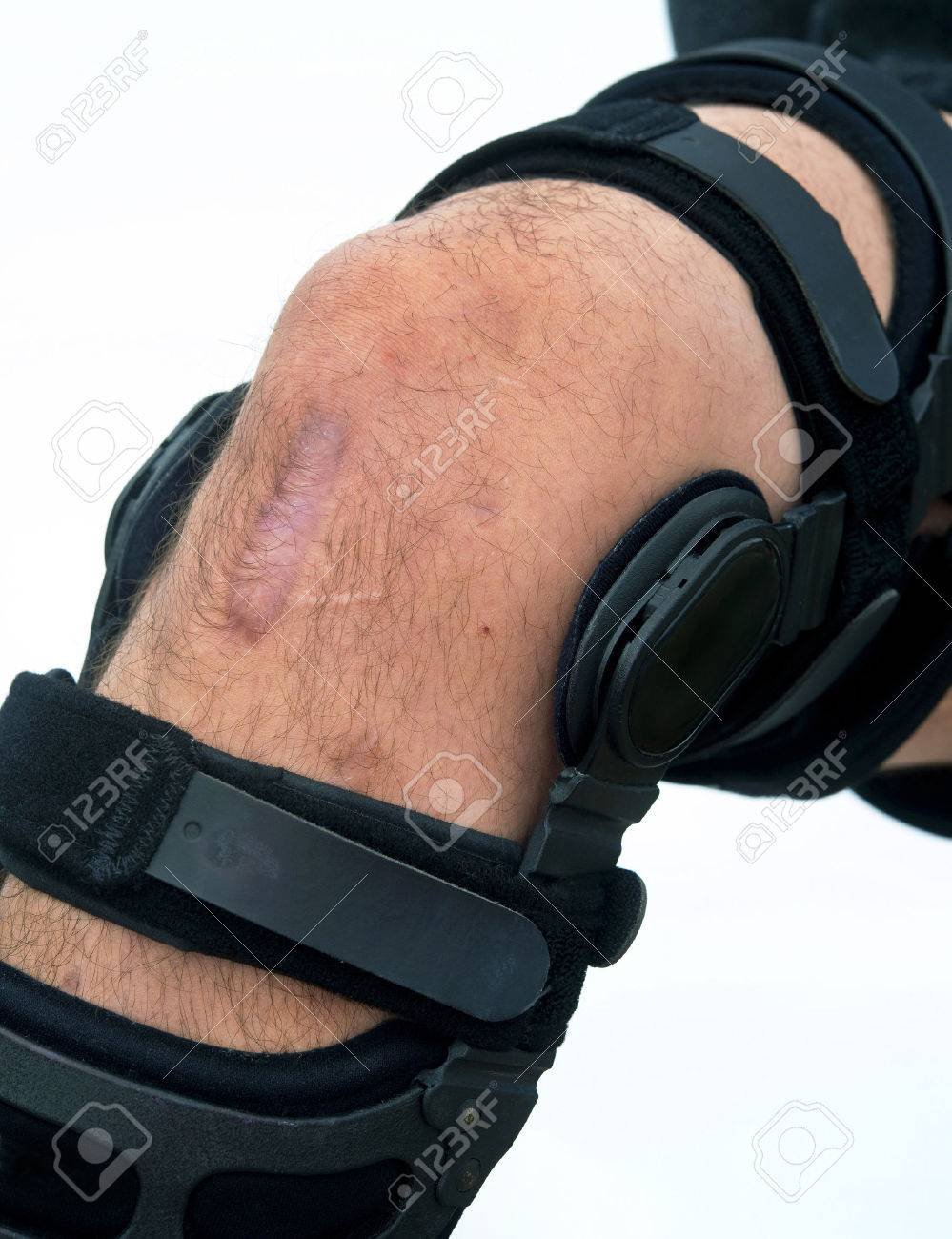 7dd0d531d7 Knee Brace For ACL Football Knee Injury Stock Photo, Picture And ...