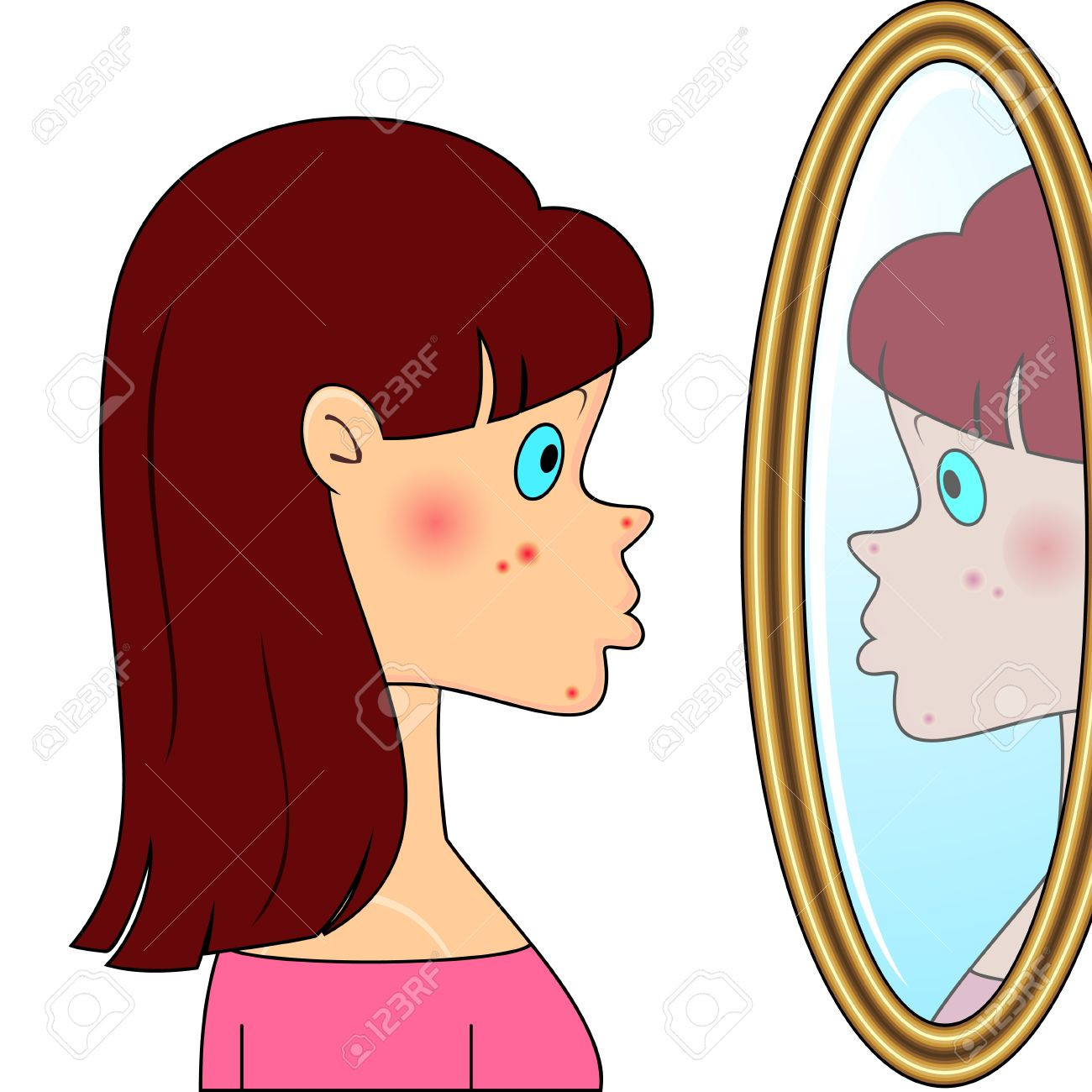 Sad teenager girl looking at mirror and seeing acne Stock Vector - 11651388