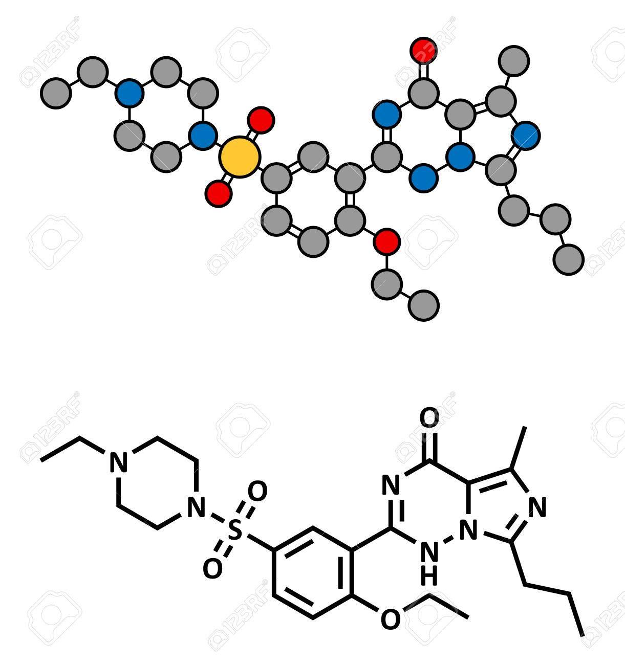 duloxetina y disfunción eréctil