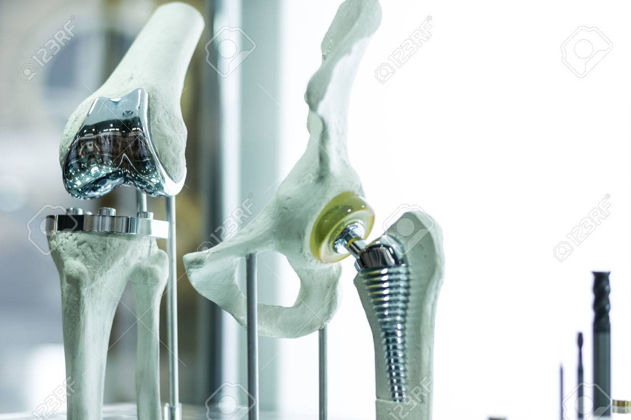 Modern knee and hip prosthesis made by cad engineer and manufactured by 3d printing - 61156734