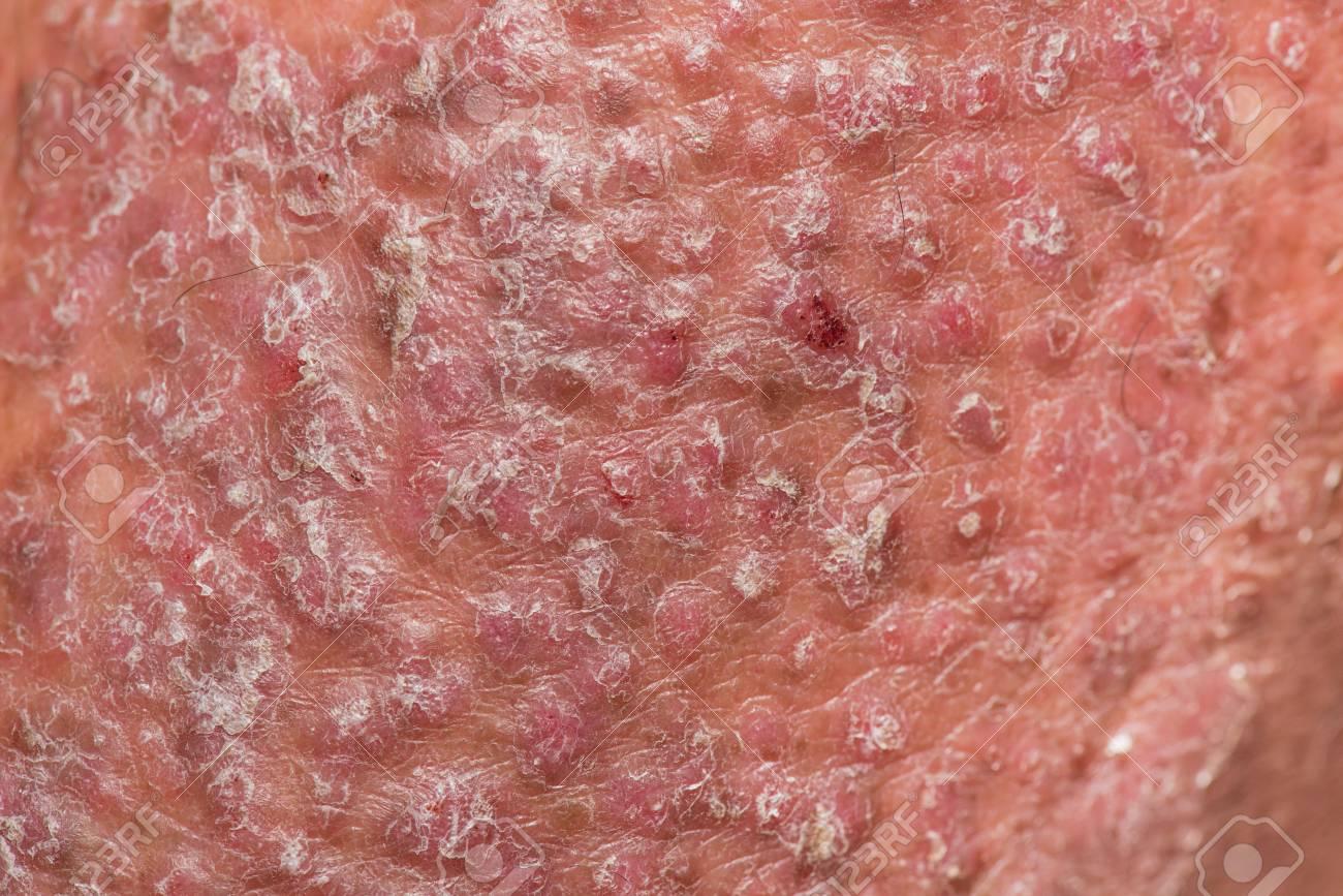 is skin psoriasis an autoimmune disease