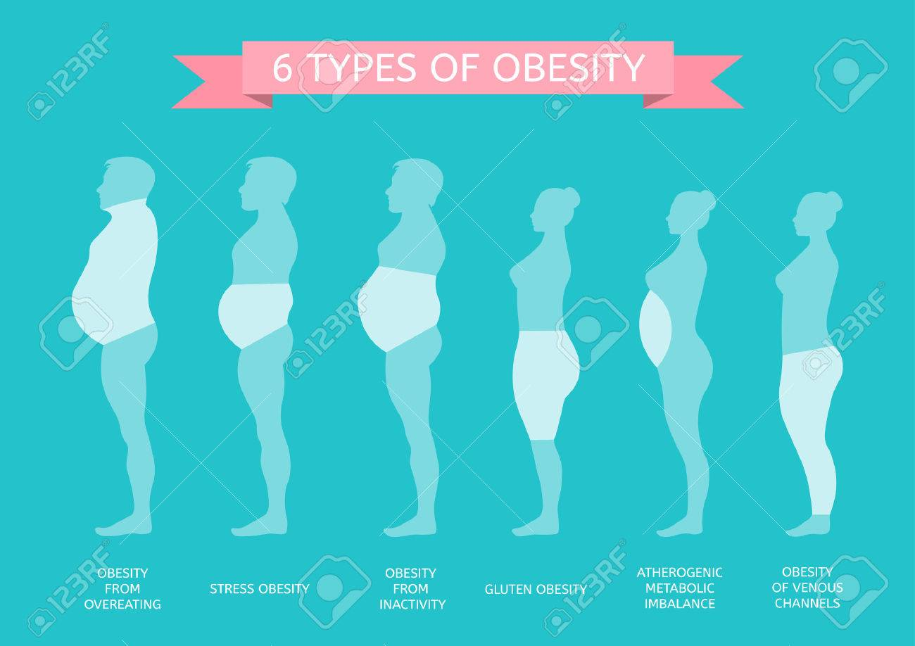 6 Types of Obesity. Male and female figure in profile - 65840646
