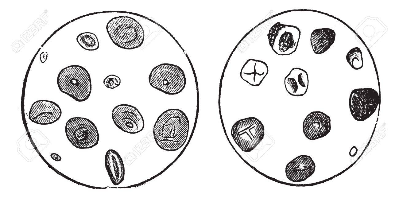 Wheat Starch (left) and Corn Starch (right), magnified, vintage engraved illustration. Trousset encyclopedia (1886 - 1891). Stock Vector - 13766856