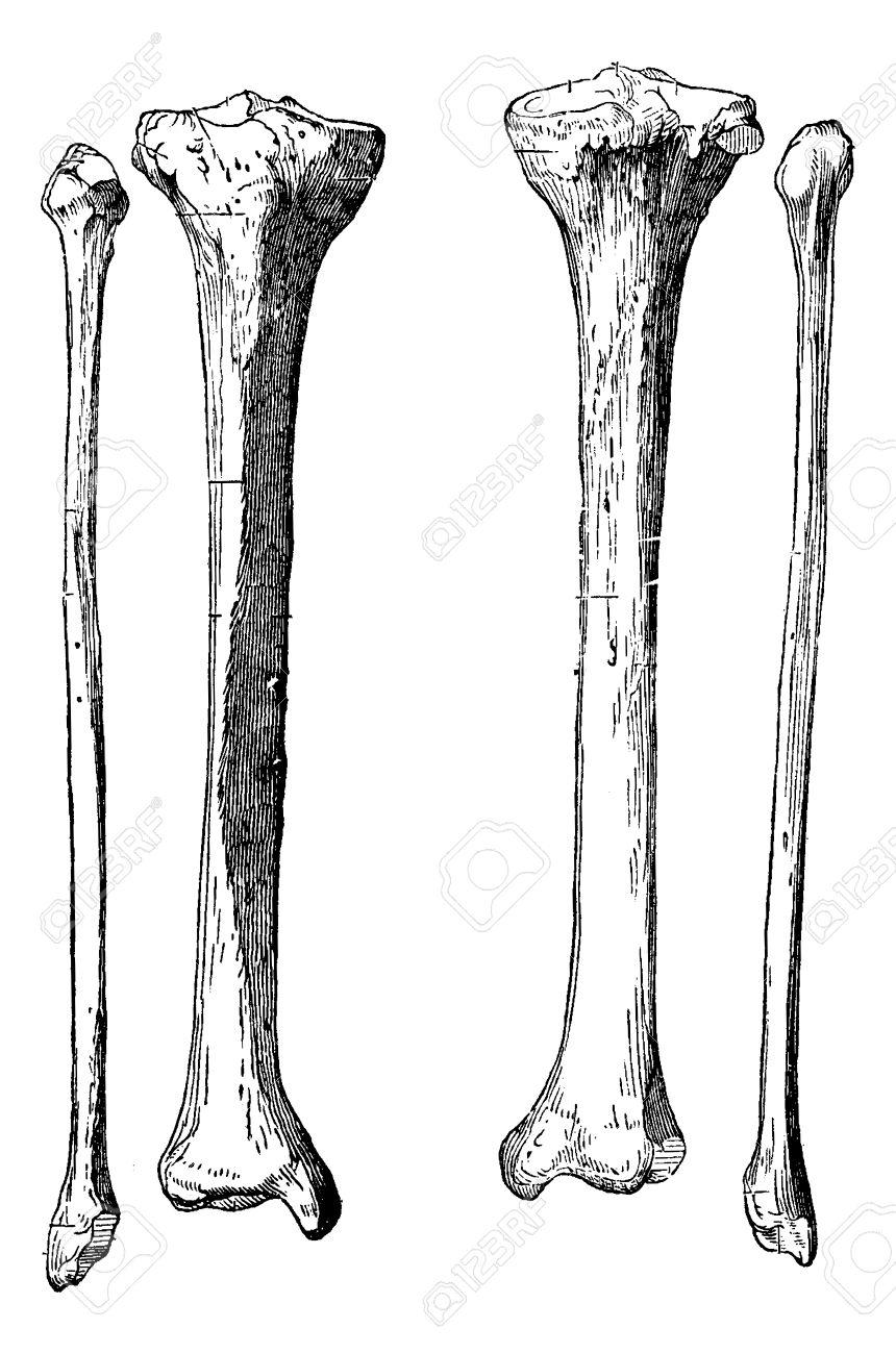 Beinknochen, Schienbein Und Wadenbein, Jahrgang Gravierte ...