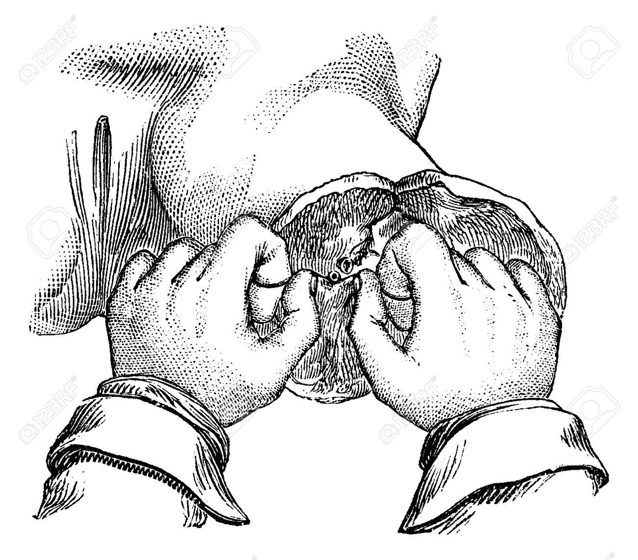Ligation of the artery after amputation of the thigh. Way to have your thumbs to grip the first node, vintage engraved illustration. Usual Medicine Dictionary - Paul Labarthe - 1885. - 35462317