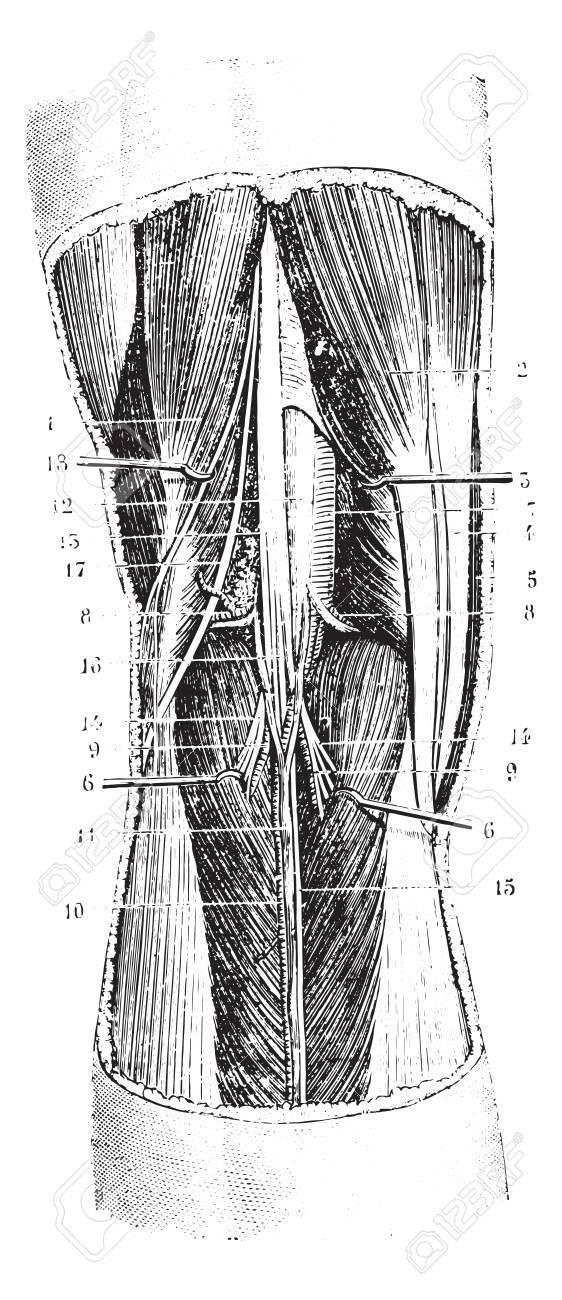 Kniekehle (links), Jahrgang Gravierte Darstellung. Übliche Medizin ...