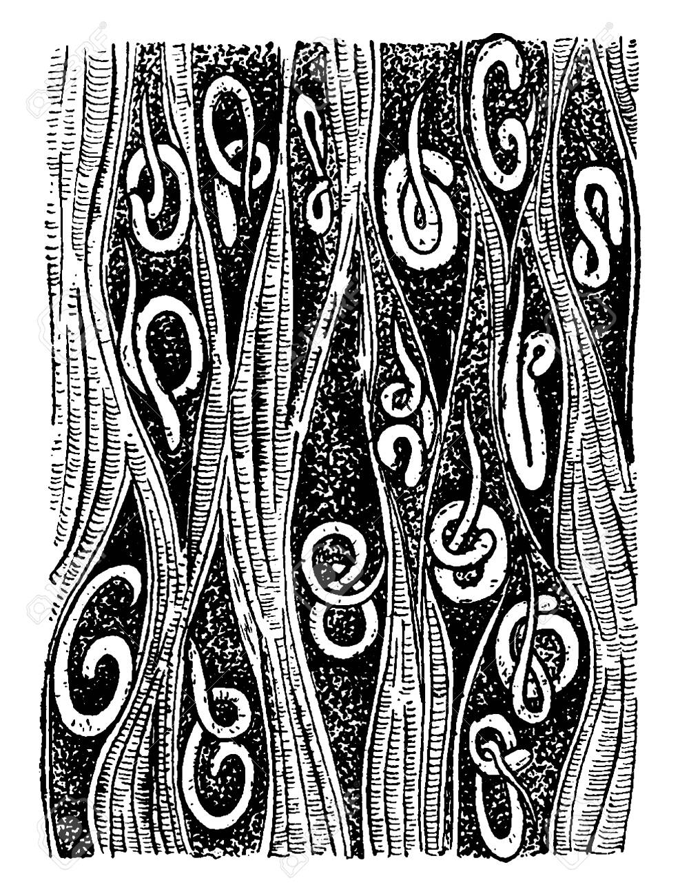 Trichinae Is The Genus Of Parasitic Roundworms Of The Phylum