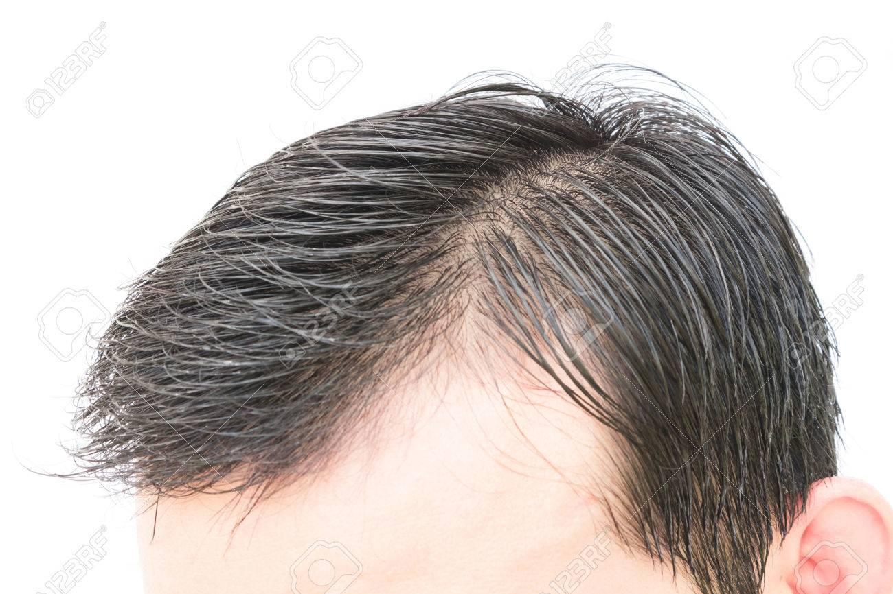 probleme cheveux